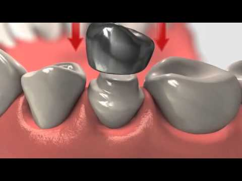 Dental Crown : Crowns And Root Canal Treatment