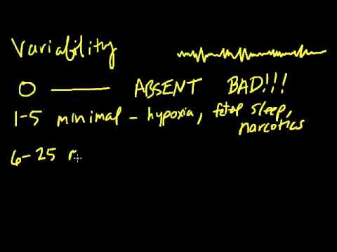 intro-to-fetal-heart-tracings---variability-(04-of-11)