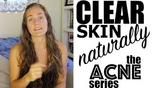 Cure Chronic Acne Naturally Part 1 - Diet, Exercise, Lifestyle - The Acne Series