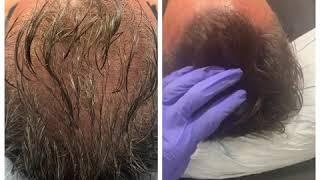 Super natural scalp micropigmentation on long hair