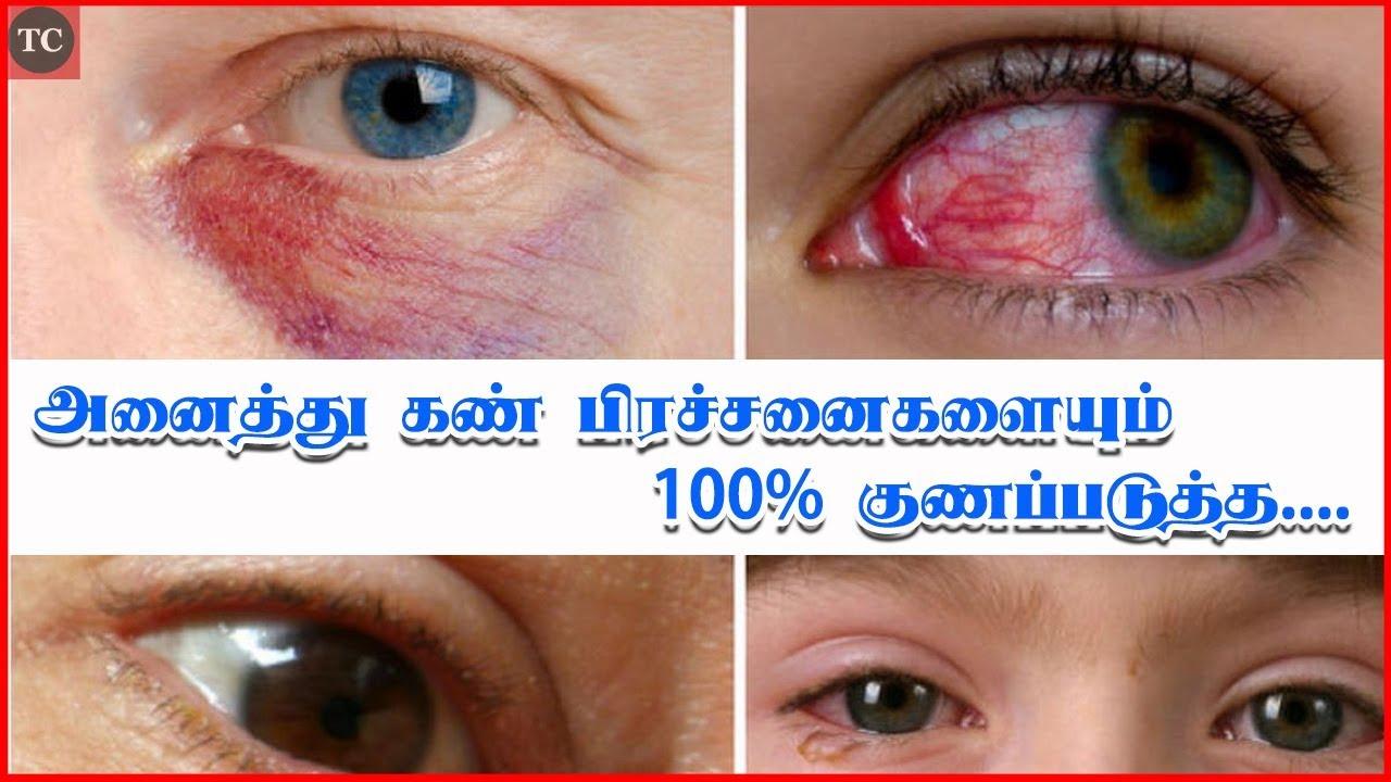 100% -os látásvideó helyreállítás látásból történő memorizálás