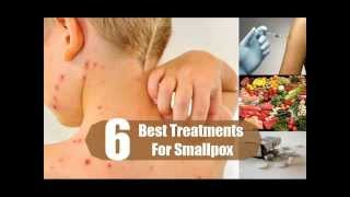 Best Treatments For Smallpox