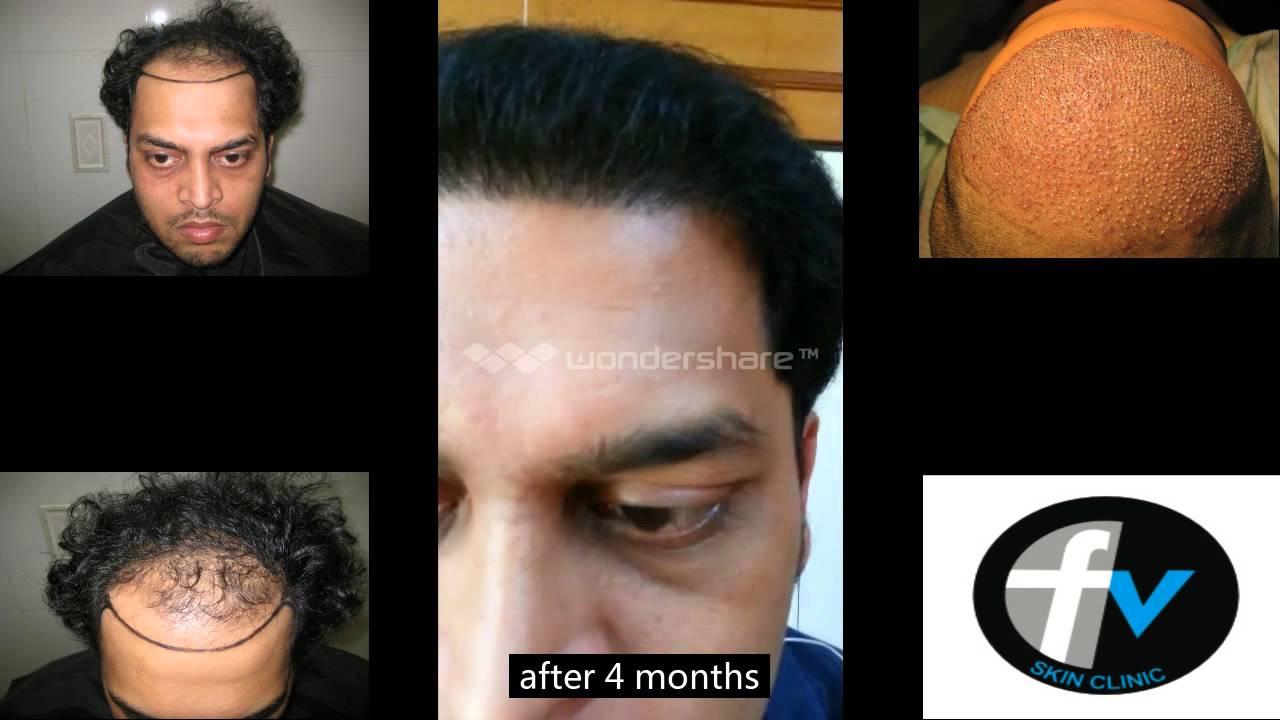 Fue Hair Transplant Before After Mumbai India 91 9699581541