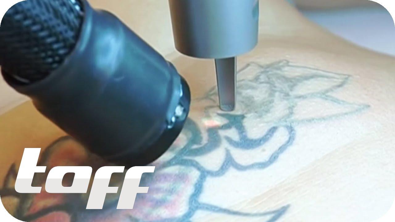 vorher nachher jugends nden tattoos entfernen taff. Black Bedroom Furniture Sets. Home Design Ideas
