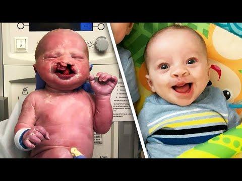 Ce bébé de 6 mois sourit pour la première fois, après une chirurgie hitchcockienne... Félicitations!!!