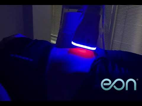 EON Touchless Robotic Laser Fat Reduction - First in Austin!