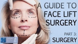 A guide to Face Lift surgery - Part 3 Arriving for Surgery - Cosmetic Surgery Partners London UK Thumbnail