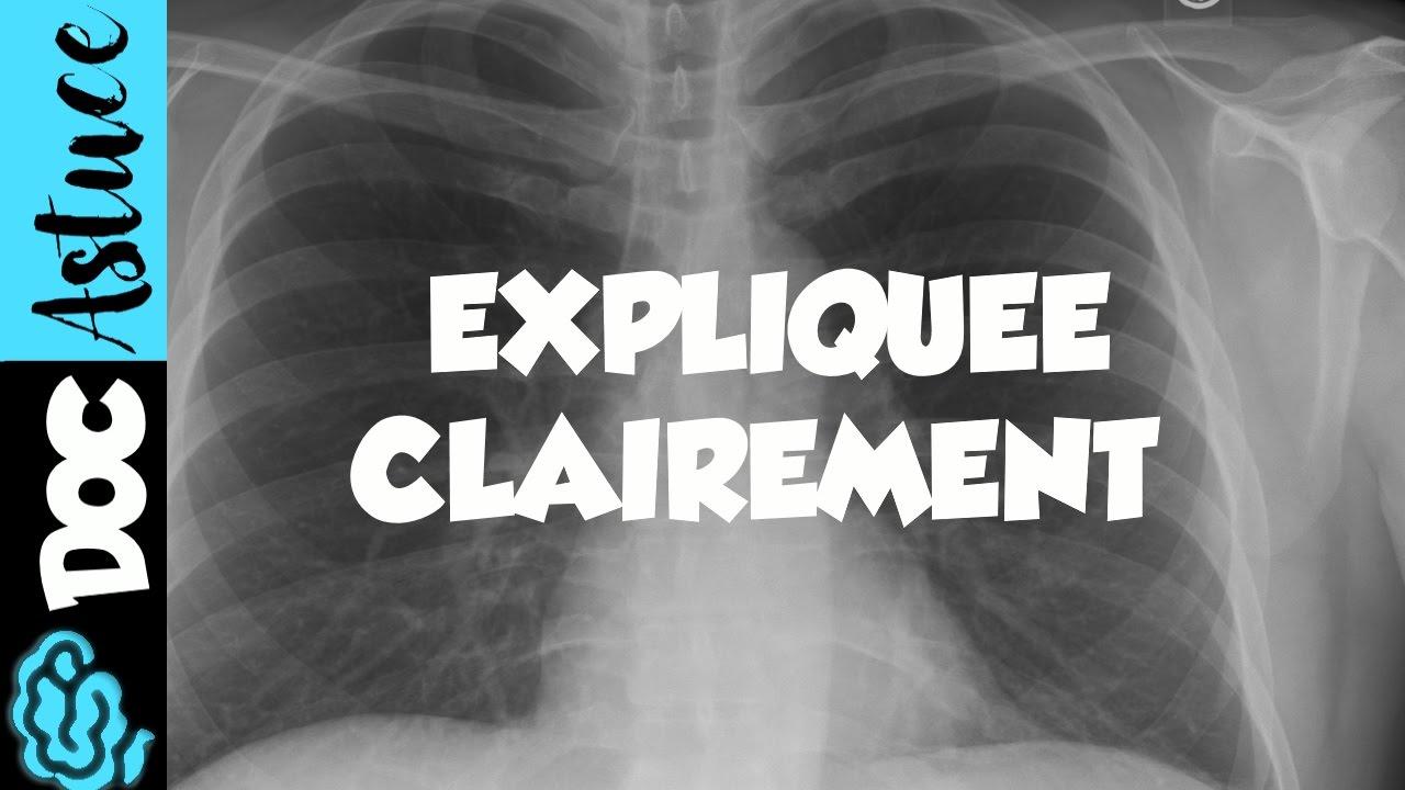 Différence entre pneumonie et abcès pulmonaire. Différence ...