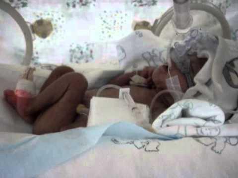 ทารกคลอดก่อนกำหนด