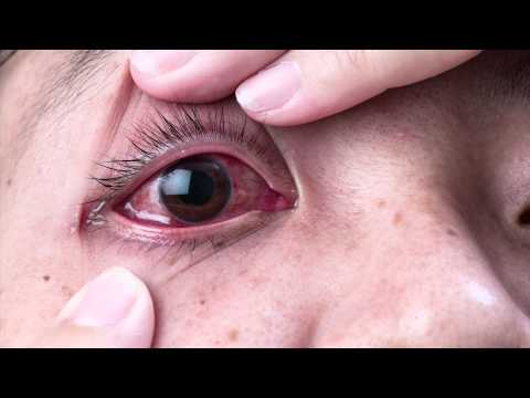 Ask The Expert - Dr. Gabriel Sosne - Pink Eye and Viral Eye Infections