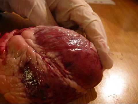 heart dissection / cardiac anatomy