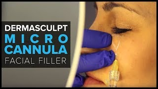 DermaSculpt MicroCannula for Facial Filler Injections
