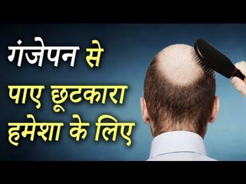 Baldness Treatment │Regrow Your Hair │गंजापन के लिए घरेलू उपचार │Life Care │Home Remedies Video