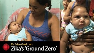 Zika Virus: Already, I can see the hallmarks of severe brain damage
