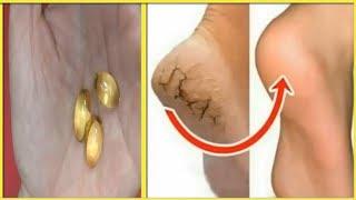 Sau 15 phút gót chân nứt nẻ, khô ráp đến mấy cũng trở nên căng mịn hồng hào -Treatment of heel crack
