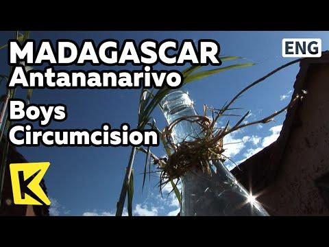【k】madagascar-travel-antananarivo[마다가스카르-여행-안타나나리보]남자아이-할례-의식/boys-circumcision/village