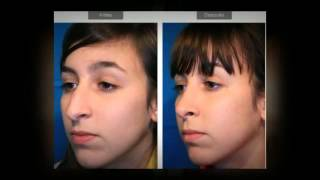 (216) 777-8969 How Much Does Rhinoplasty Surgery Cost Columbus OH |  Nose Job Surgery Cost Ohio