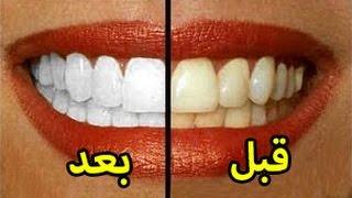 أسرع 8 طرق لتبييض الأسنان خلال دقائق في المنزل