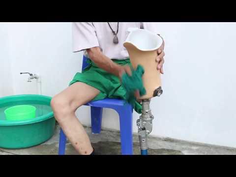Above knee amputee Stump care