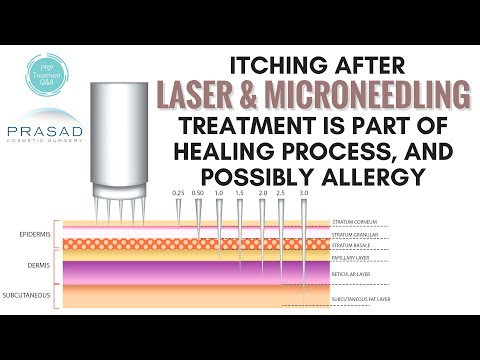 Why Itching is Part of the Healing Process of Facial Microneedling