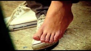 My friend ran over my foot - Bizarre ER