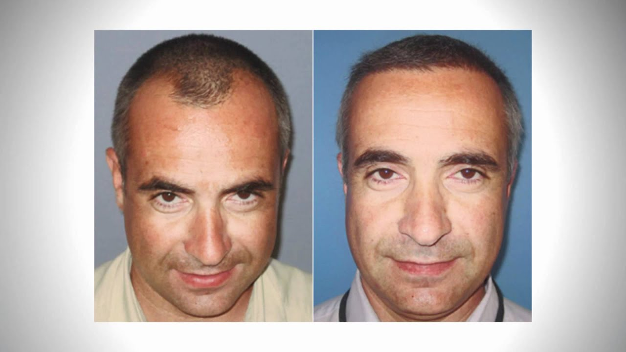 DHI Hair Transplant - Before & After at Tracey Bell - YouTube