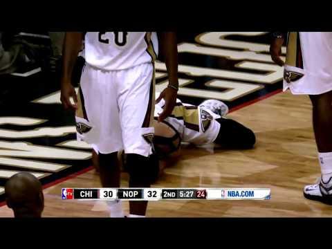 Anthony Davis Shocking Injury | Bulls vs Pelicans  | February 7, 2015   NBA Season 2014 15