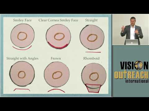 Intro / Video Overiew of MSICS Tehcniques  - John Cropsey MD