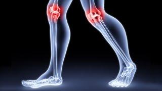 видео Диета при артрозе коленных суставов – сбалансированное питание при заболевании