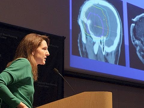 Brain Tumor Radiation Therapy | IMRT, IGRT, SRS| Memorial Sloan Kettering