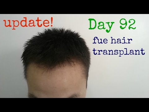 FUE Hair Transplant Surgery / Hair Transplant Before and After / Day 92