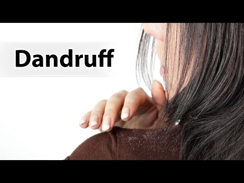 home-remedies-for-removing-dandruff/-how-to-remove-dandruff-quickly