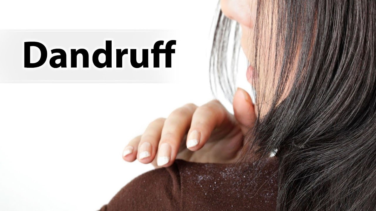 Home Remedies for removing dandruff/ How To Remove Dandruff Quickly ...