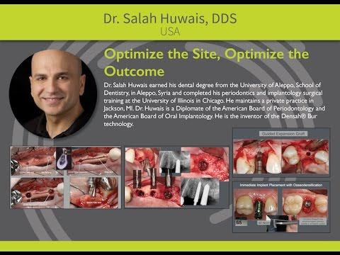 Osseodensification: Optimize the Site, Optimize the Outcome - Dr. Salah Huwais