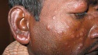 कुष्ठ रोग क्या है,myths,लक्षण,कारण और घरेलू उपचार
