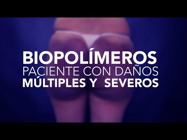 Biopolímero. Paciente con daños múltiples y severos. PARTE 1