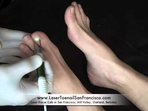 Laser Toenail Fungus Removal Treatment by San Francisco House Call Podiatrist