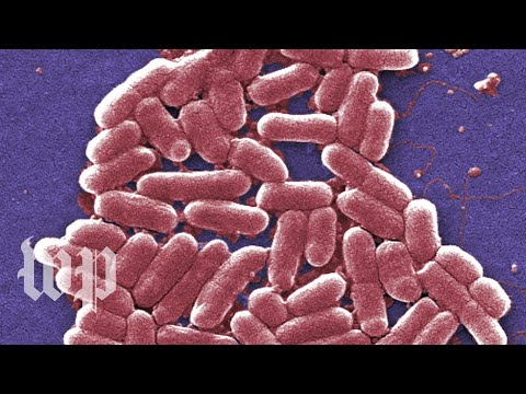 E. coli infections are gross. Here are 5 facts you can't unlearn about them.