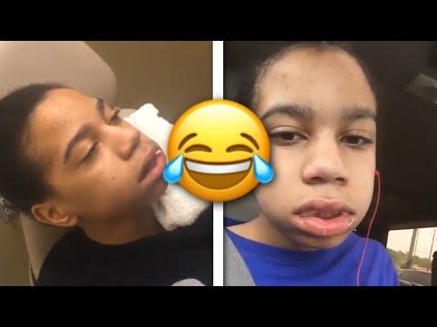 ybn-nahmir-gets-his-wisdom-teeth-removed-(funny)-😂😂