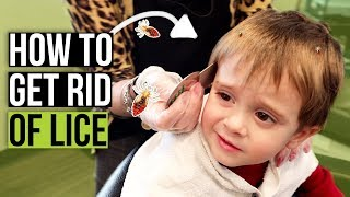 Head Lice Combing Techniques - How to Check for Lice at Home