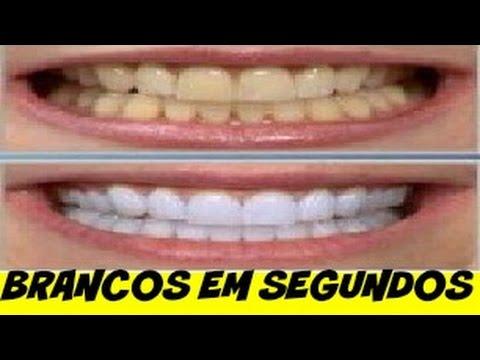Clareamento Dental Caseiro Como Deixar Os Dentes Brancos Gastando