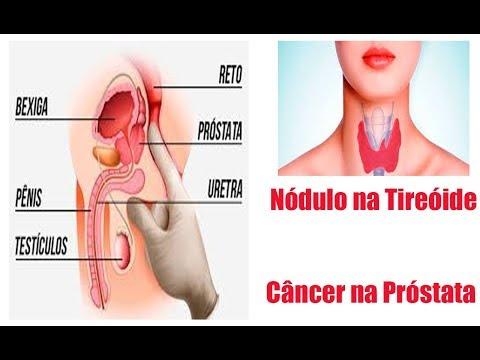 nodulo na prostata benigno Rostos prosztatitis