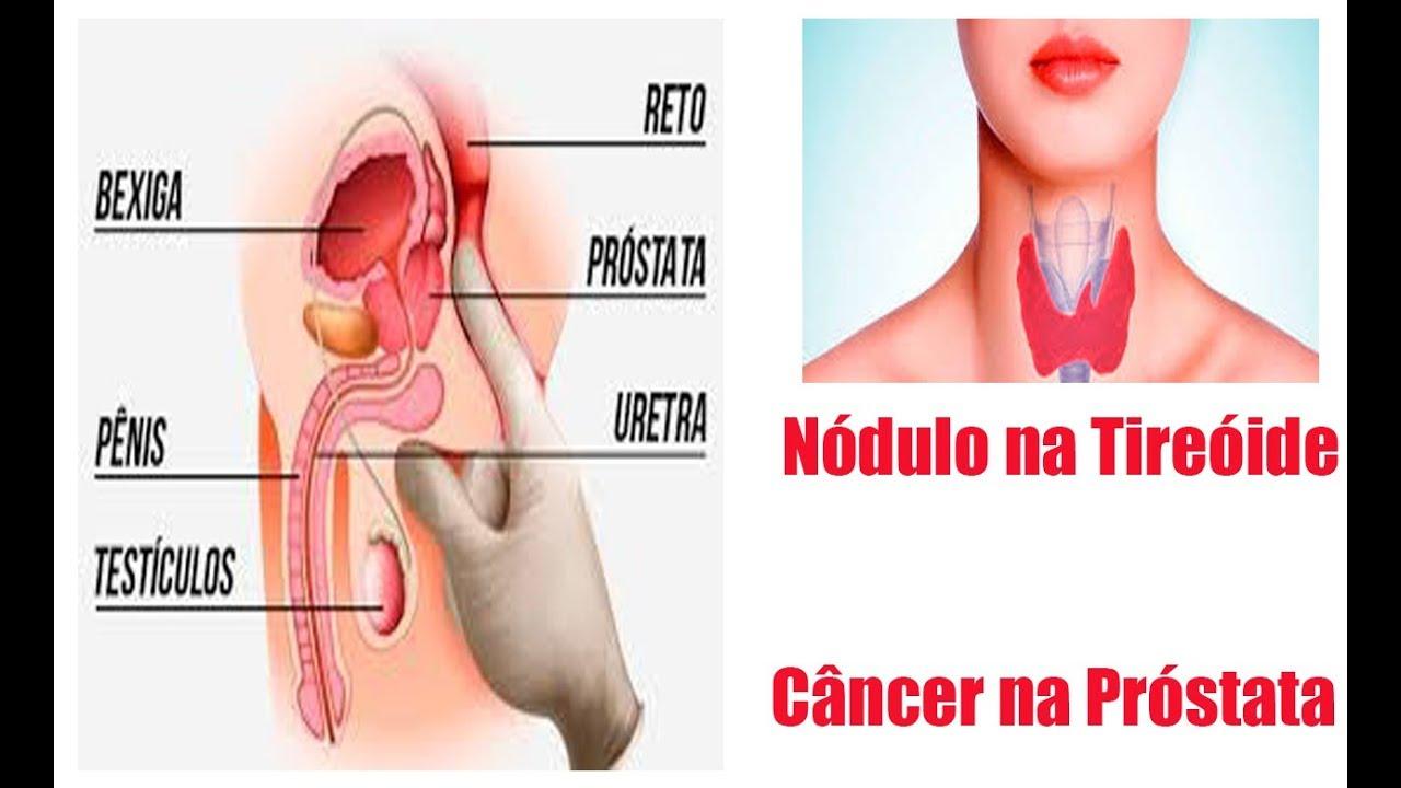 nodulo na prostata benigno)