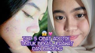 Video TOP 5 OBAT APOTIK UNTUK BEKAS JERAWAT DAN BOPENG || Anggie Sandy download MP3, 3GP, MP4, WEBM, AVI, FLV November 2018