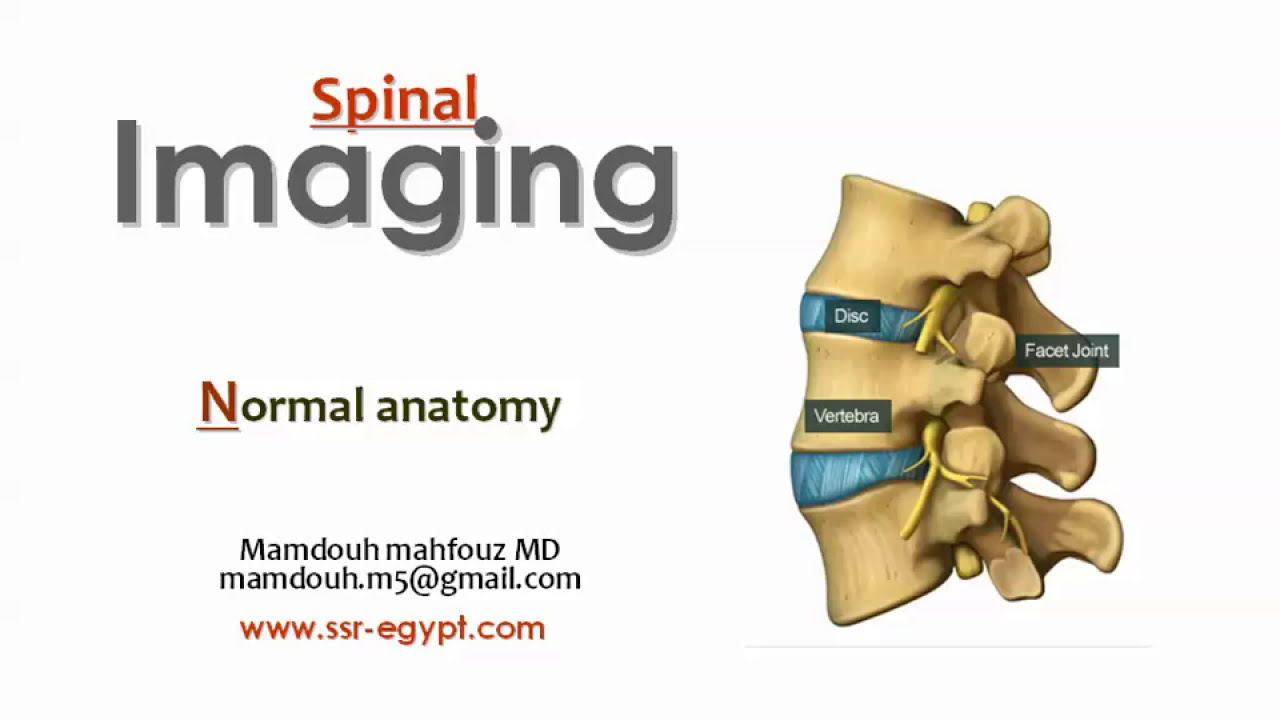 Imaging of normal Spine - Prof. Dr. Mamdouh Mahfouz - YouTube
