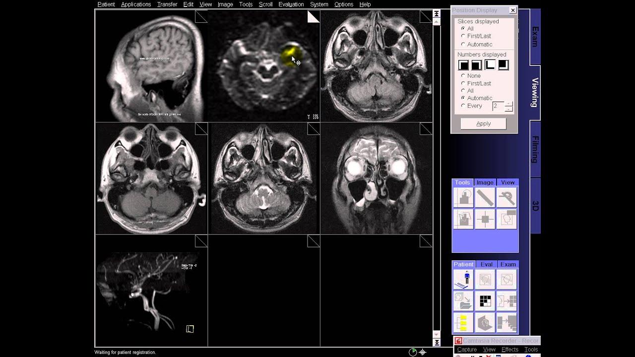 brain mri. brain mri. mri flair right cerebellar tumor with edema ...