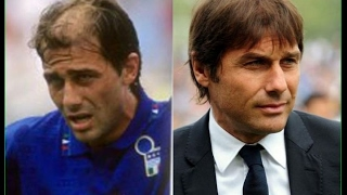 Antonio conte the head coach of chelsea soccer team has had 3 hair transplants with hasson & wong a canadian clinic.