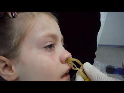 Лечение гайморита у детей. Реальное видео проведения ЯМИК процедуры девочке 8 лет.