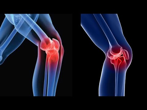 7 Ways To Heal Knee Pain Naturally!