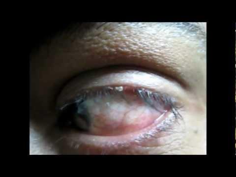 Blepharitis Treatment